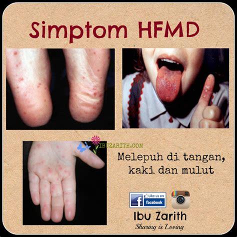 mitu tisu tangan dan mulut rawatan semulajadi untuk penyakit tangan kaki dan mulut