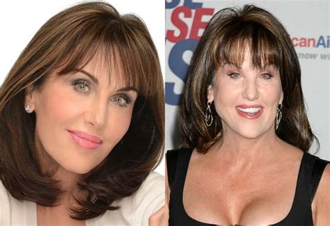 robin mcgraw hairstyle robin mcgraw facelift plastic surgery before and after
