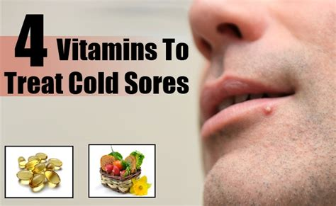 how to relieve a fever blister thats inside the nose ehow top 4 vitamins to treat cold sores treating a cold sore