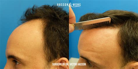 hair transplant grafts pictures of hairstyles fue hair work hairstylegalleries com