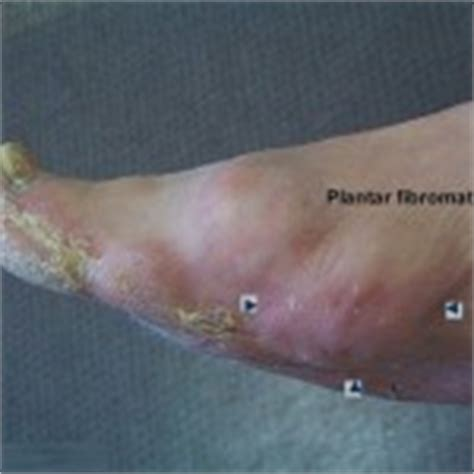 plantar fibromatosis causes symptoms treatment