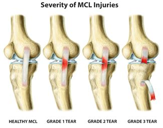 Acl Mcl Lcl Diagram