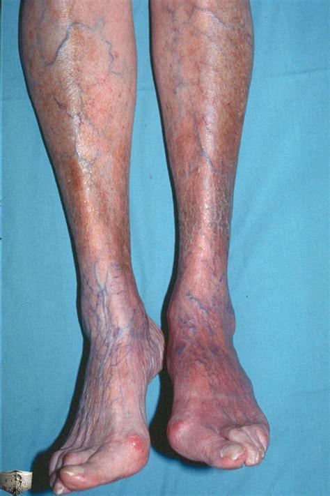 lyme disease symptoms late stage lyme disease symptoms