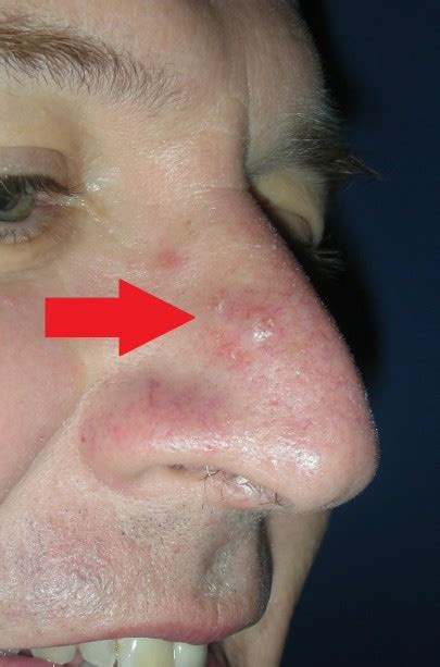nose cancer early basal cell carcinoma images