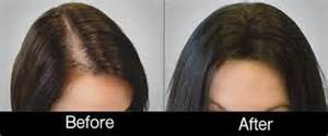 hair loss therapy for women hair loss therapy for men