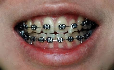 black color braces the gallery for gt braces colors black