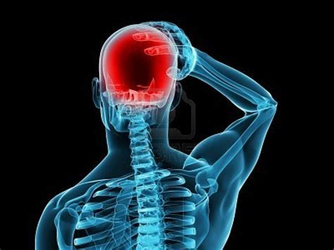 dolori dietro la testa emicrania mal di testa un nemico invisibile che ti