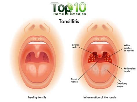 home remedies for tonsillitis top 10 home remedies