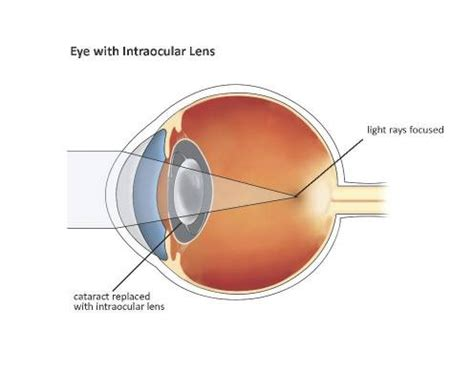 introduction to intraocular lenses | cataract surgery