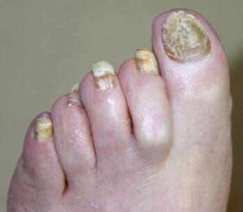 imagenes uñas con hongos 191 c 243 mo eliminar los hongos de las u 241 as reporte michoac 225 n