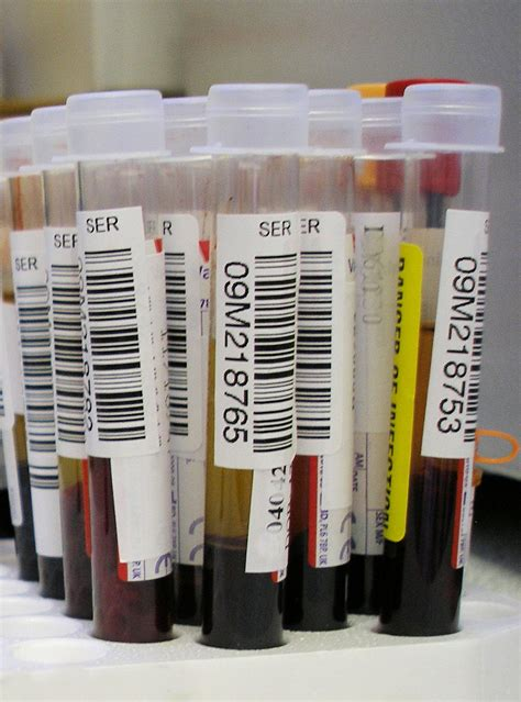 Can Lab Test Detect Detox by File Blood Test Jpg Wikimedia Commons
