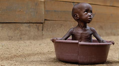imagenes impactantes de hambre en africa la desnutrici 243 n infantil en 193 frica