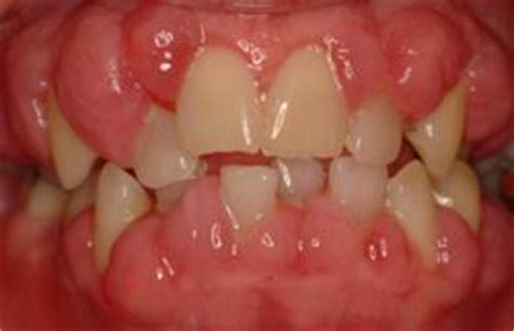 growth on s gum bad teeth gummy smiles hyperplasia birth defect orthodontic braces medication