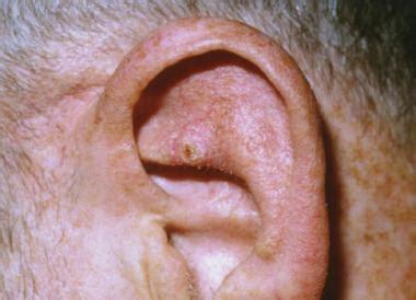ear tumor image gallery ear tumor