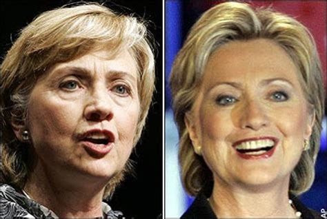 did hillary clinton get a facelift hillary clinton plastic surgery before and after facelift
