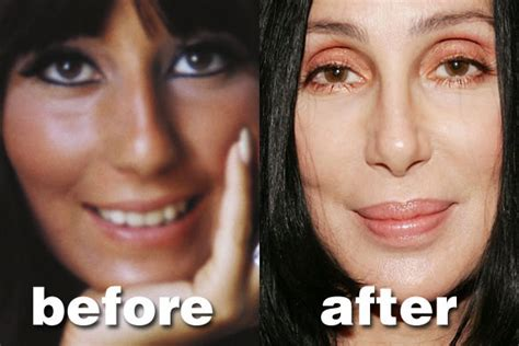 chatter busy cher surgery