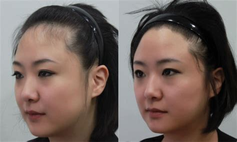 pics of natural hairstykes for women receding hairlines hair transplant surgery healthy new hair