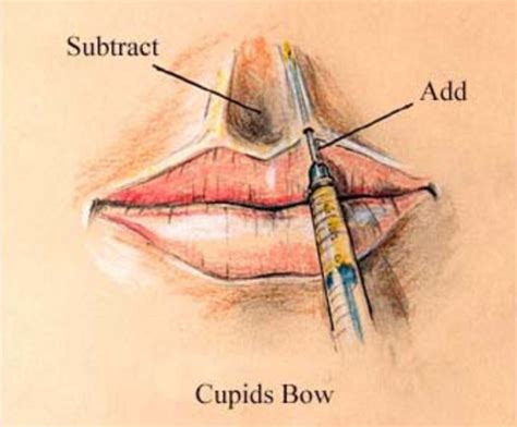 the cupid s bow technique from casual to committed using the power of polarization books lip augmentation panama city lip enhancement destin florida
