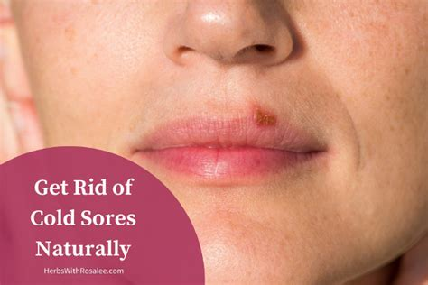 cold sores treatments controlling herpes naturally