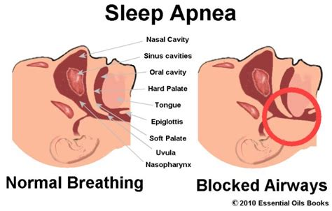 How Sleep Apnea Can Hurt A Relationship by Sleep Apnea Or Sleep Apnoea Sleep Disorder Raise Sudden