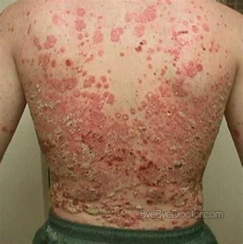 plaque psoriasis pictures symptoms causes treatment