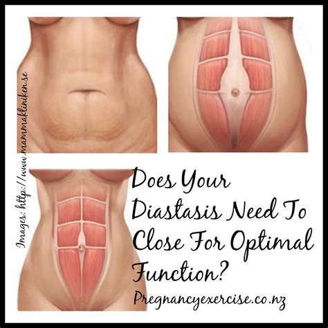 diastasis recti c section does your diastasis need to close for optimal function
