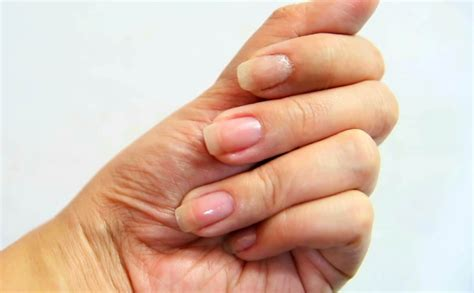 split nail how to fix a split nail 10 steps with pictures wikihow