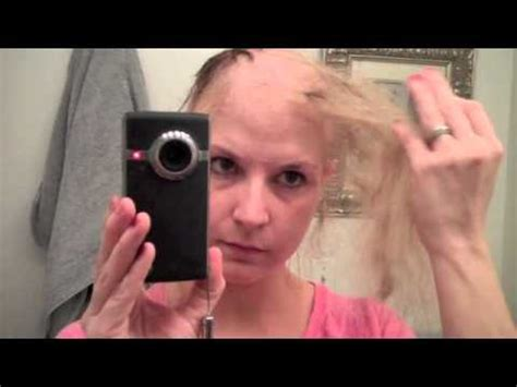 hair grew in and fell out after chemo road to bald dom last 5 days of chemo hair loss process