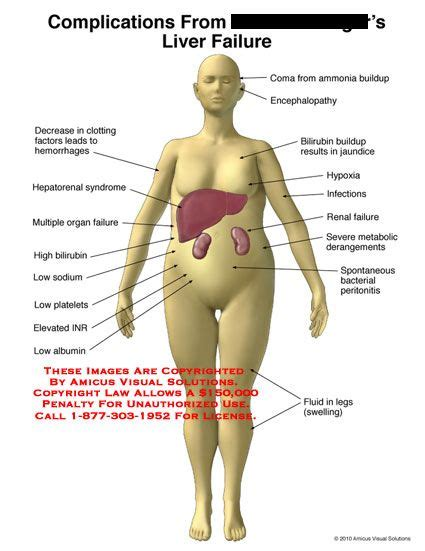 Will Detoxing Liver Cause Edema Of And by Liver Help And Advice In Addition To Indicators And