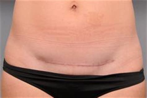c section scar revision before and after photo gallery c section scar removal case 171