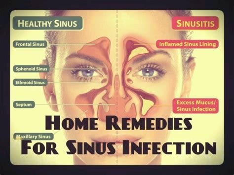 remedies for sinus infection health