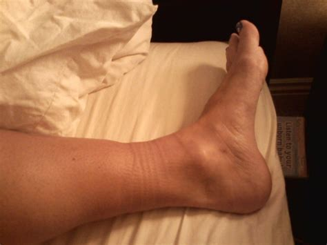 what to do for swollen feet after c section first pregnancy on becoming a mother