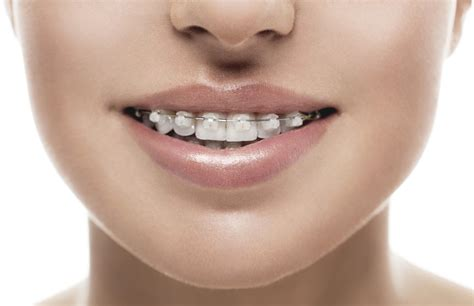 clear braces with color orthodontics what are ceramic braces