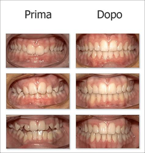 apparecchio interno fisso implantologia dentale l aquila prestazioni