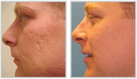 remove acne scars acne scar removal what should you know health reviews