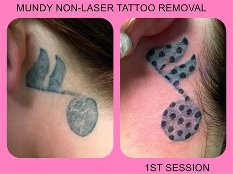 non laser tattoo removal reviews 8 best non laser removal images on