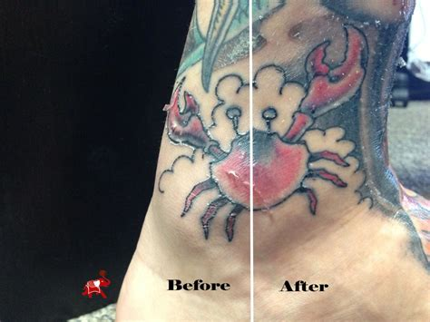 tattoo healing process pictures 11 things to consider before getting a