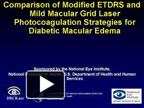 grid pattern laser photocoagulation ppt comparison of modified etdrs and mild macular grid