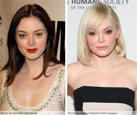 rose tarlow plastic surgery rose mcgowan plastic surgery before after plastic