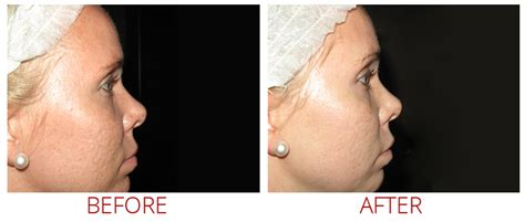 c section scar revision surgery before and after collagen p i n micro needling memphis