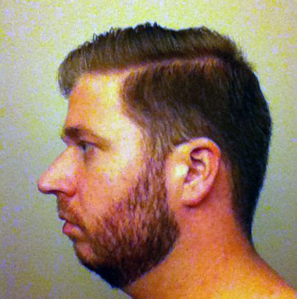 Beard Styles For Double Chin | 17 best images about shit beard on pinterest beard and