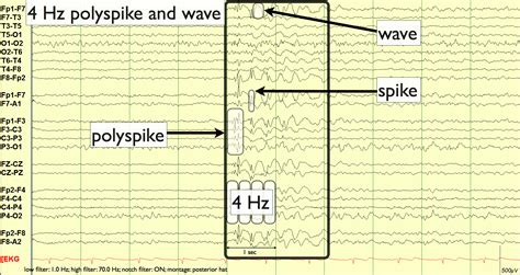 sle eeg report 28 images guidelines for preparing and