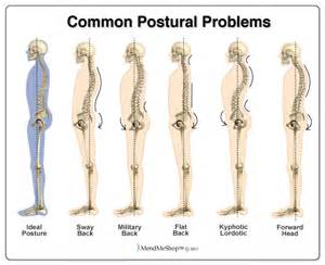 How pilates can correct kyphosis lordosis and swayback posture