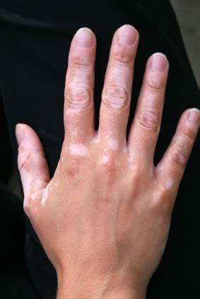 vitiligo images does vitiligo go away any experiences the student room