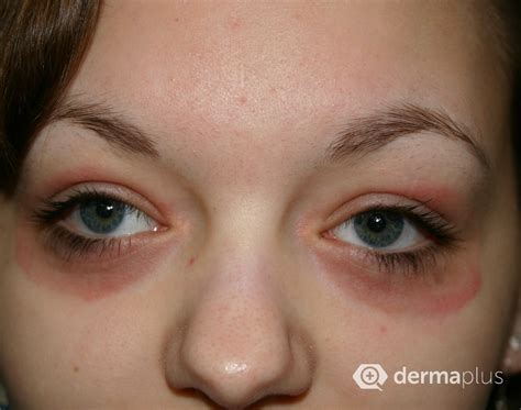 ichthyosis images ichthyosis image pictures photos