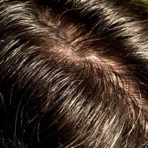 capelli grassi alimentazione pi 249 vivi salute benessere alimentazione bellezza