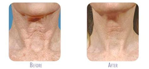 Healing Light by Fraxel Laser Raleigh Nc Laser Scar Removal Bodylase 174