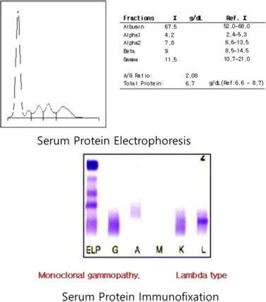 protein electrophoresis urine serum protein electrophoresis and immunofixation