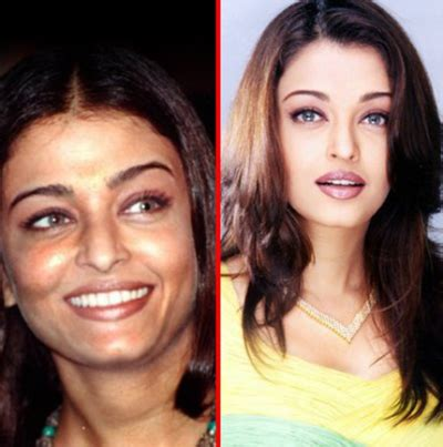 8 bollywood actresses who have undergone plastic surgery