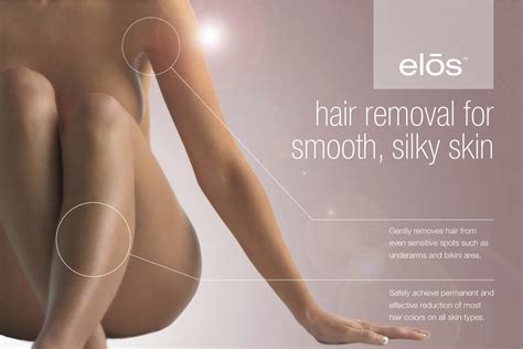 hair remover lojae laser clinic ltd hair removal